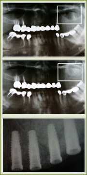 Sinus Augmentation image