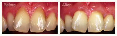 soft-tissue-graft-procedure-before-after
