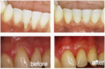 soft-tissue-grafts-before-after