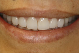 Esthetic Crown Lengthening image4-after