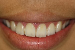 Esthetic Crown Lengthening image5-after