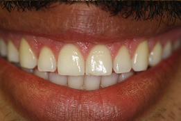 Esthetic Crown Lengthening image3-after