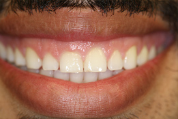 Esthetic Crown Lengthening image3-before
