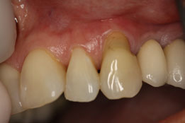 Replacing composite fillings with gum grafting image-before
