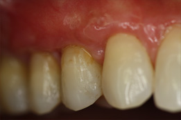 Replacing composite fillings with gum grafting image-after