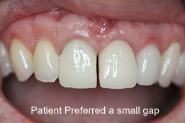 implant image gap-after