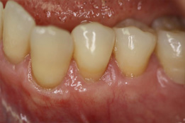 Soft Tissue Grafting image-after