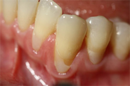 Soft Tissue Grafting image-before