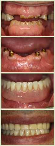 Dental Implants Full Overdenture image